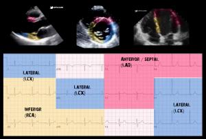 EKG-Echo Regional Wall Mapping